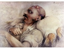 Watercolour Painting of Waterloo Injuries, by Dr. Charles Bell. Copyright Army Medical Services Museum.