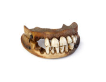 Image of Waterloo Teeth
