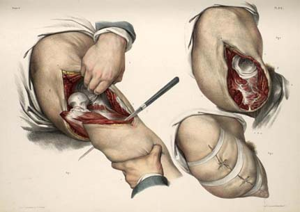 an illustration of a hip joint operation